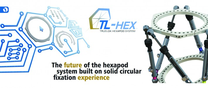 Tibia, Foot & Ankle Reconstruction Course Using Truelok / TL-Hex